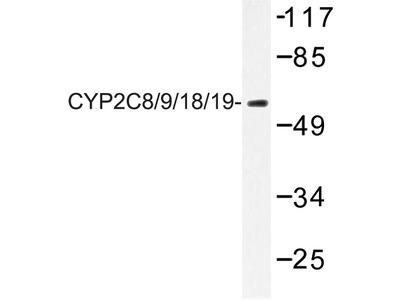 anti CYP2C8 (+ 2C9, 2C18, 2C19)