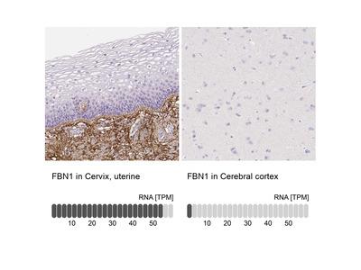 Anti-FBN1 Antibody