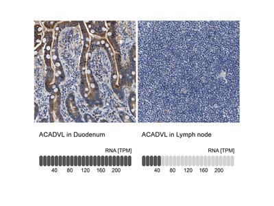 Anti-ACADVL Antibody