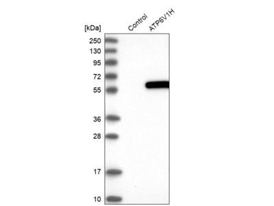 Anti-ATP6V1H Antibody