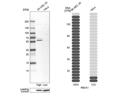 Anti-RBCK1 Antibody