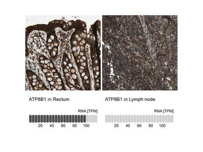 Anti-ATP8B1 Antibody
