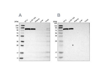 Anti-HK1 Antibody