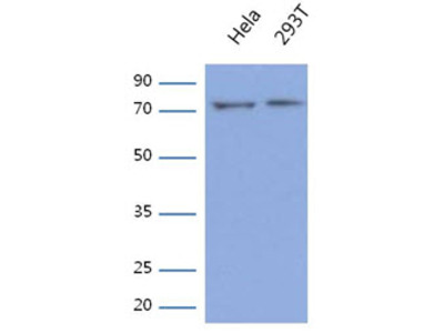 anti Glycyl-tRNA synthetase