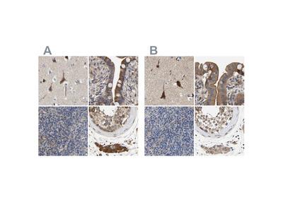 Anti-CCDC155 Antibody