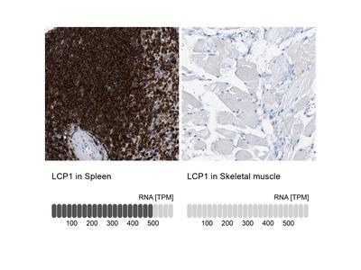Anti-LCP1 Antibody