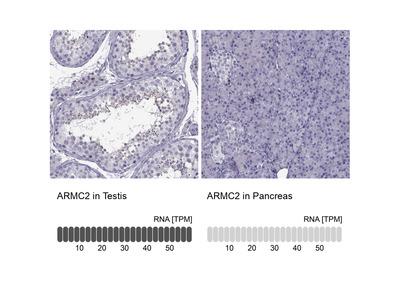 Anti-ARMC2 Antibody