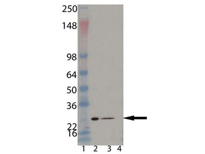 PSMB1 Monoclonal Antibody