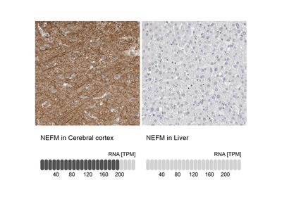 Anti-NEFM Antibody