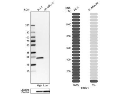 Anti-PRDX1 Antibody
