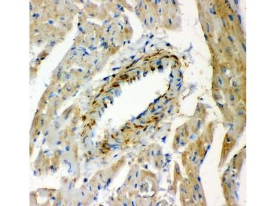 LGALS1 / Galectin 1 Antibody