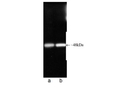 PSMC5 / SUG1 Monoclonal Antibody