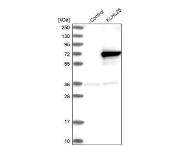 Anti-KLHL25 Antibody
