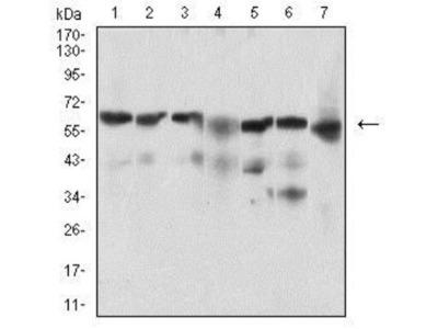 BACE-1 Antibody (3C1C3)