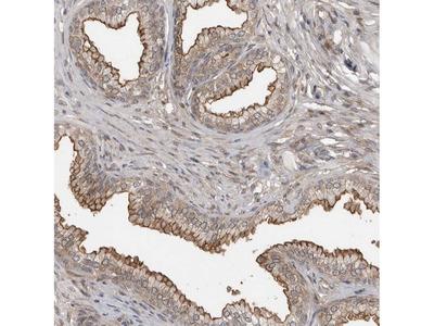 Anti-ABL1 Antibody