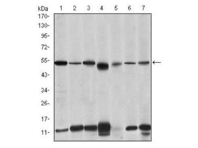 IRAK4 Antibody (2H9)