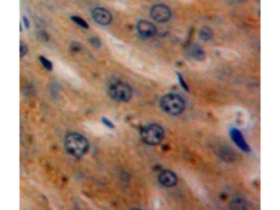 Alpha-2 Antiplasmin (SERPINF2) Antibody