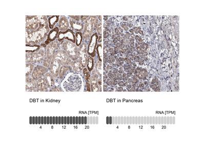 Anti-DBT Antibody
