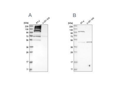 Anti-C1orf112 Antibody