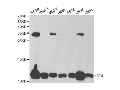 Diazepam Binding Inhibitor (DBI) Antibody