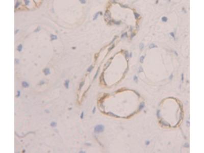 Peripheral Myelin Protein 22 (PMP22) Antibody