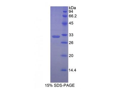 Human Myosin Heavy Chain 7, Cardiac Muscle, Beta (MYH7) Protein