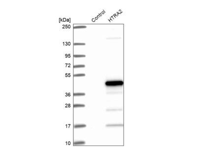 Anti-HTRA2 Antibody