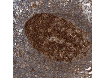 Anti-MYO1E Antibody