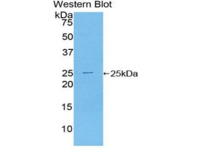 Toll Like Receptor Adaptor Molecule 2 (TICAM2) Antibody