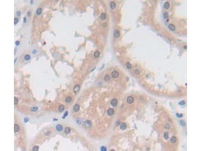 Vitamin D Binding Protein (DBP) Antibody