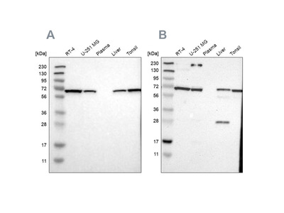 Anti-LTA4H Antibody