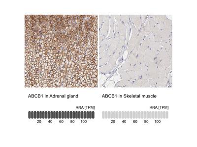 Anti-ABCB1 Antibody
