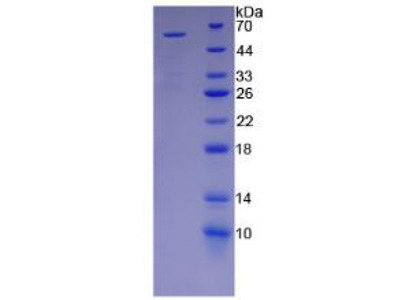 Human Killer Cell Immunoglobulin Like Receptor 2DS2 (KIR2DS2) Protein