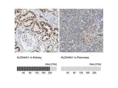 Anti-ALDH4A1 Antibody