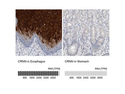 Anti-CRNN Antibody