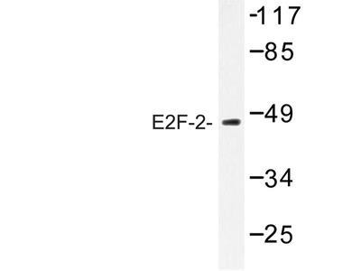 anti E2F2 (202-252)