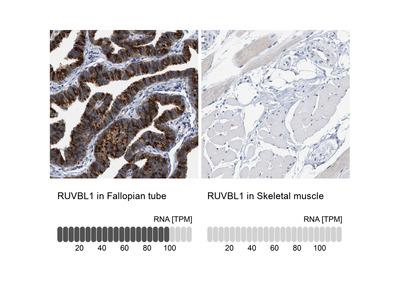 Anti-RUVBL1 Antibody