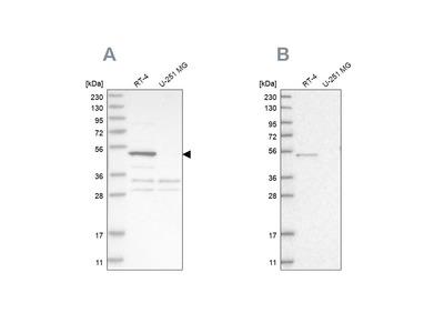 Anti-SCP2 Antibody