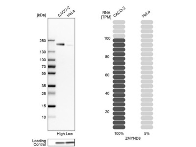 Anti-ZMYND8 Antibody