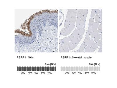 Anti-PERP Antibody