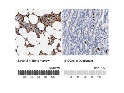 Anti-S100A8 Antibody