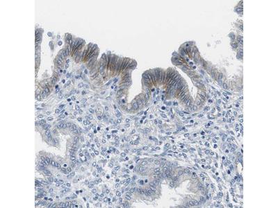 Anti-SLC6A6 Antibody
