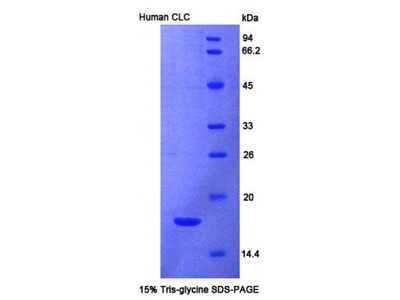 Human Charcot Leyden Crystal Protein (CLC) Protein