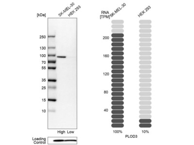 Anti-PLOD3 Antibody