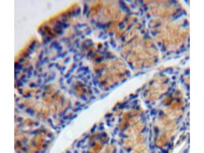 Tryptase Delta 1 (TPSd1) Antibody