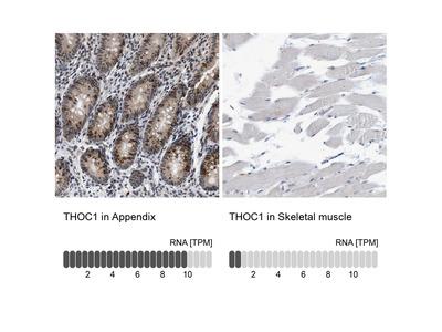 Anti-THOC1 Antibody