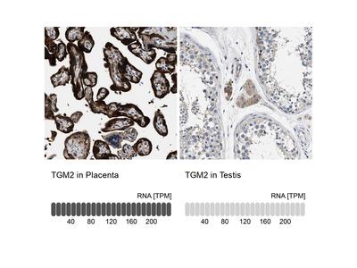 Anti-TGM2 Antibody