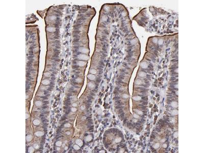 Anti-SLC15A1 Antibody