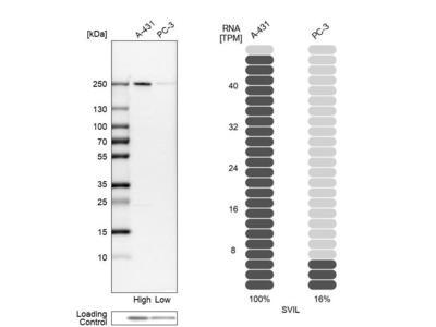 Anti-SVIL Antibody