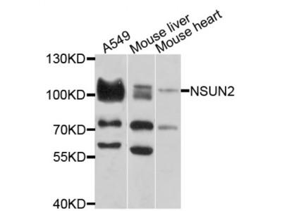 NOP2/Sun RNA Methyltransferase Family Member 2 (NSUN2) Antibody